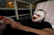 إصابة مصور سوري أثناء احتجاجات في فرنسا